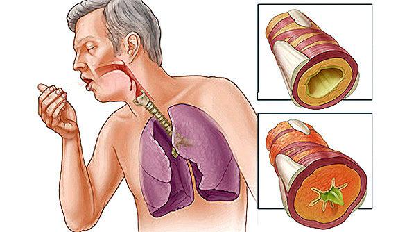 bronhitis-02
